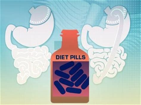 diet pill surgery picture 11