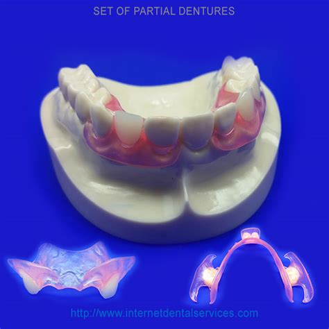 can extra h be added to flexible denture picture 15