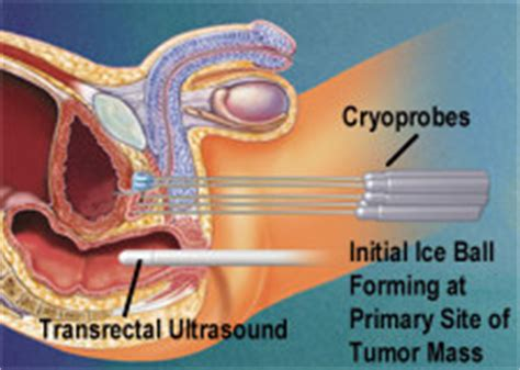 Cryosurgery prostate picture 8