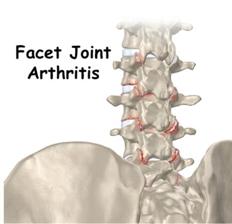 criteria for facet joint replacement picture 15