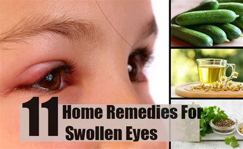 herbal remedy for edema picture 13
