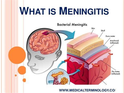 bacterial mengingitis picture 11
