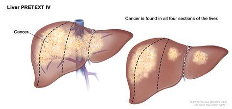 childhood liver cancer picture 7