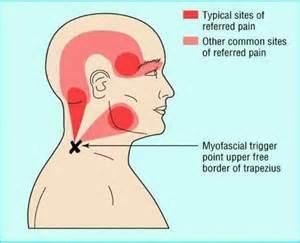 natural headache relief picture 9