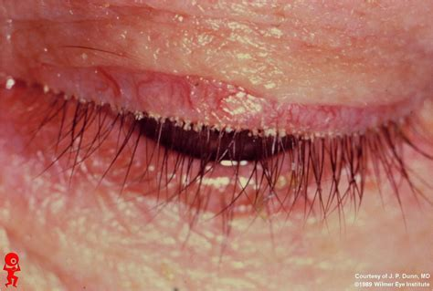 rosacea and mites picture 10