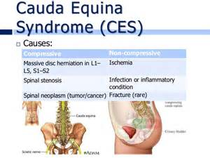 bladder infection symptoms causes picture 3