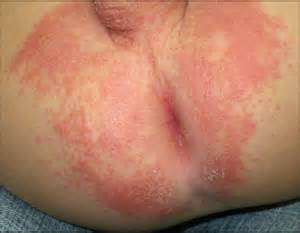 yeast infections in nine month old babies picture 9