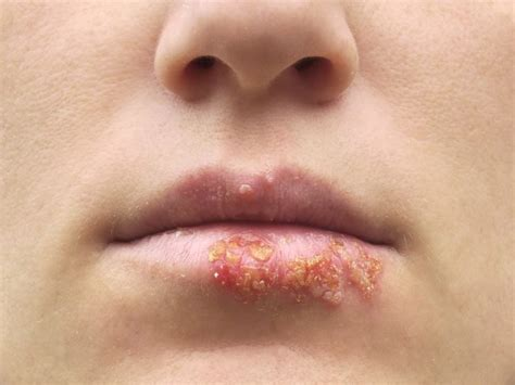 about herpes picture 15