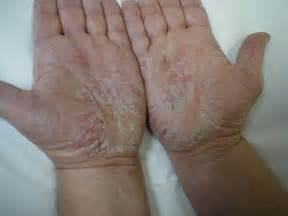 katinko treatment for blisters picture 5