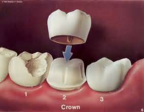crowns teeth picture 10