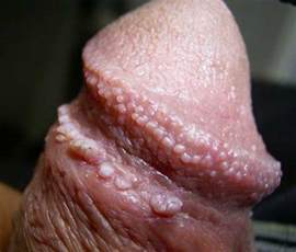 penis skin bulge yeast picture 13