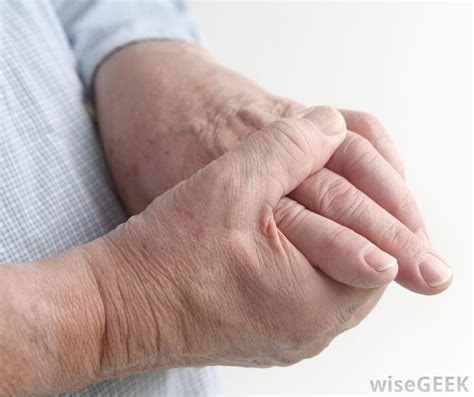 causes for muscle cramps in hands picture 14