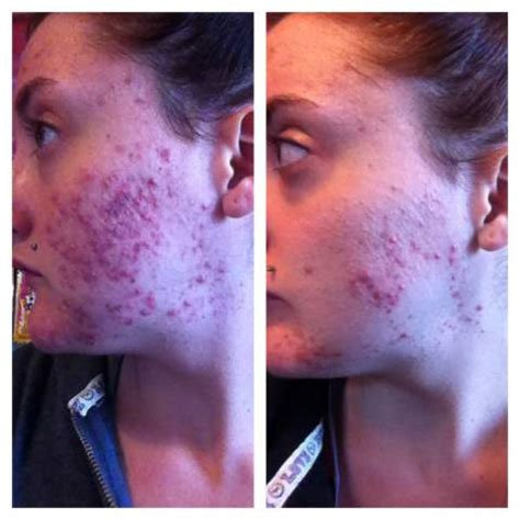 acne physical exam picture 11