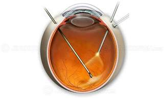 best supplements for epiretinal membrane picture 7