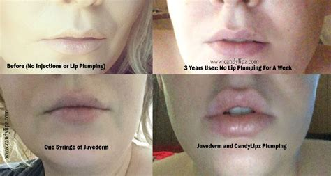 Lip injections cost picture 2