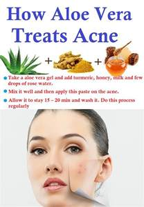 aloe and acne picture 17