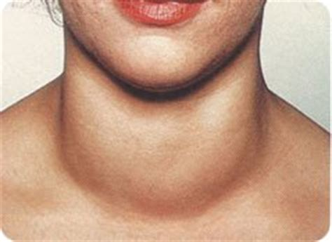removal of thyroid in babies picture 2