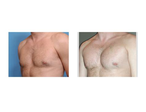 male breast enlargement picture 7