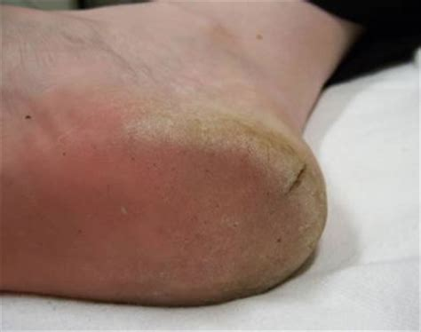 foot skin fissures picture 6