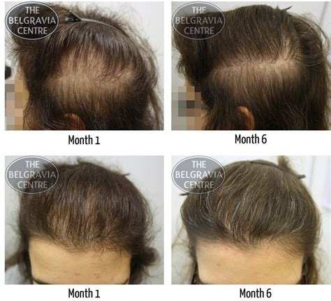 hair loss and thyroid picture 1