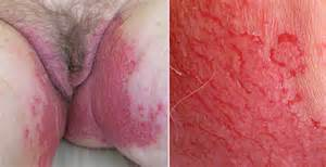 itching burning inflamed vaginal lips cortisone picture 3