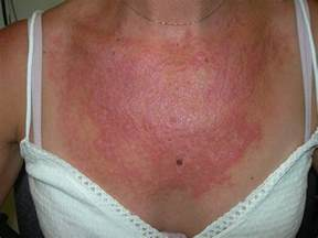 cure for syringoma treatment picture 11