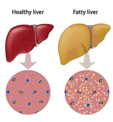 fatty liver disease caused by gastric byp surgery picture 1