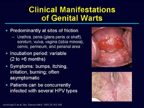 science: genital warts may not always be spread picture 1