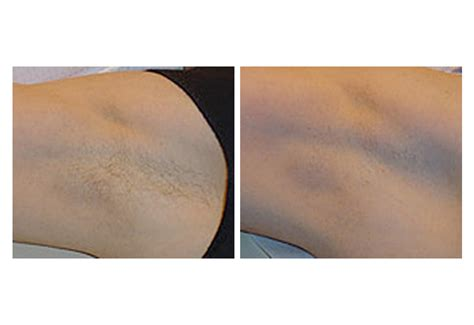 san diego laser hair removal picture 1