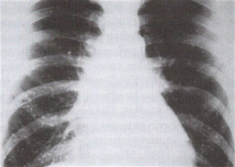 yeast infection lung picture 3