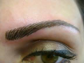 hair loss eyebrows picture 1