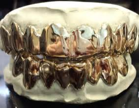 custom silver teeth picture 5