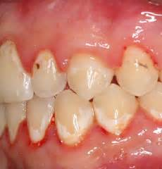 decalcification of teeth picture 17