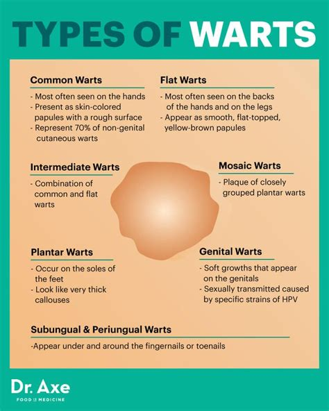 pictures of different kinds warts picture 7