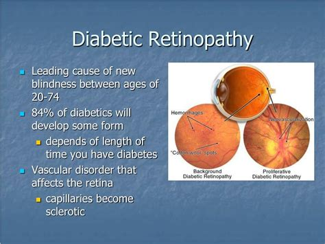 diabetic eye identity kit picture 6