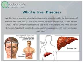 treatment for liver disease picture 3