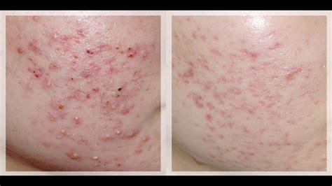 acne vs blackheads picture 14