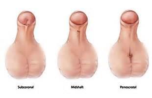 hypospadias bladder picture 6