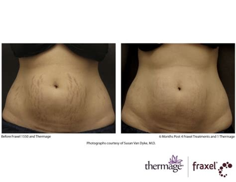 belly stretch marks;before and after; profractional picture 1