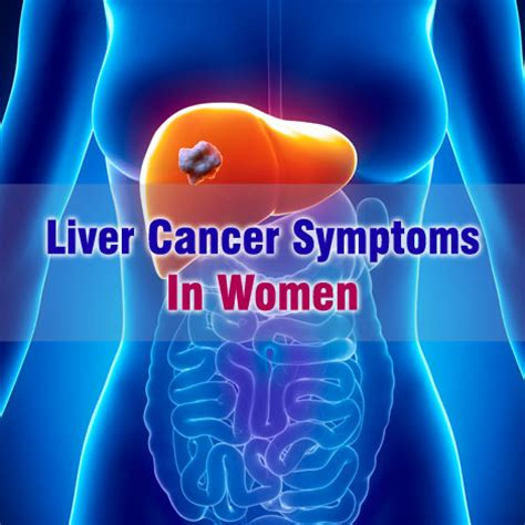 liver cancer, symptoms of picture 10
