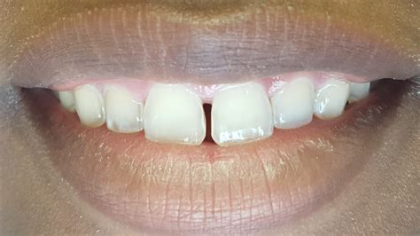 fixing gap in teeth picture 5