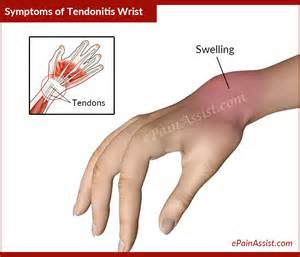 tendonitis relief picture 7