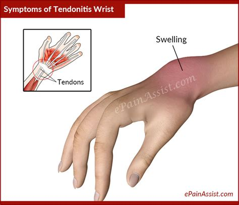 tendonitis relief picture 6
