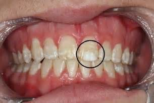 children how to whiten yellow teeth picture 15