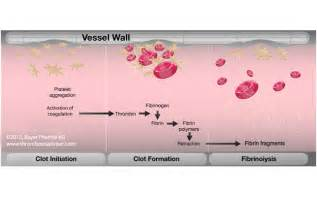 what is the process of fibrinolysis in liver picture 13