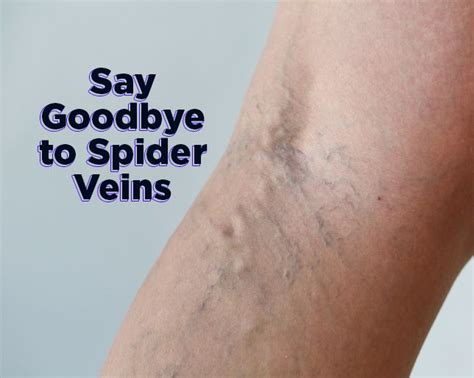 what herbs are good to open the veins picture 5