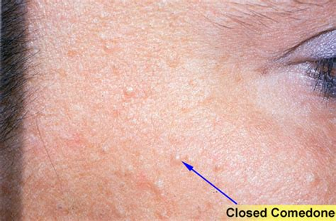 cure for syringoma treatment picture 15