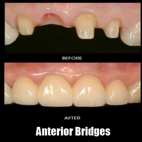 los angeles teeth whitening picture 7
