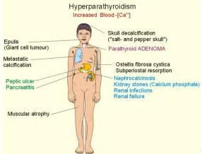 hypo parathyroidism picture 2