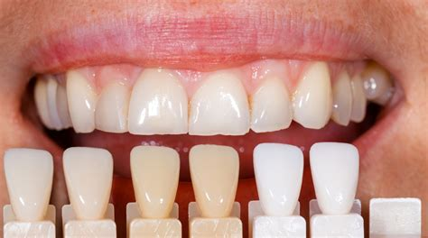 what is venner teeth picture 11